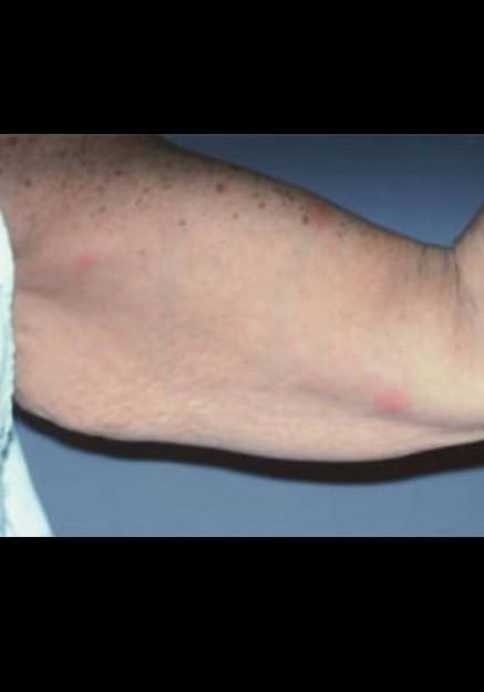 Arm Lift – Case 1