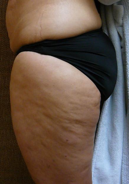 Vaser Liposuction – Case 15
