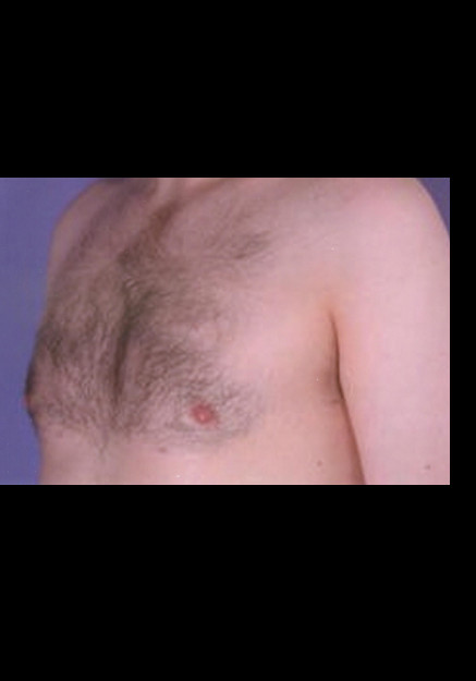 Male Breast Reduction – Case 7